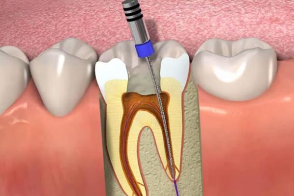 Endodontia - Tratamento de Canal