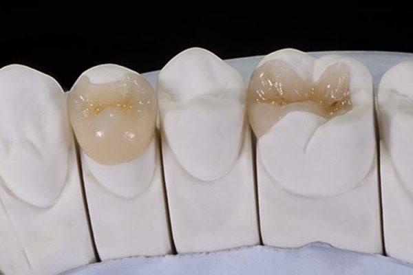 Blocos Dentários Cerâmicos