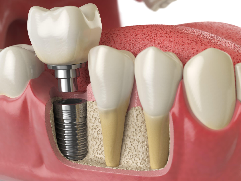 Protese Dentaria sob Implante