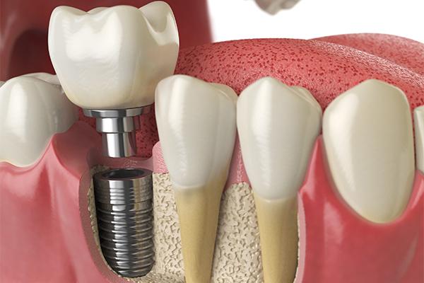 protese-sobre-implante