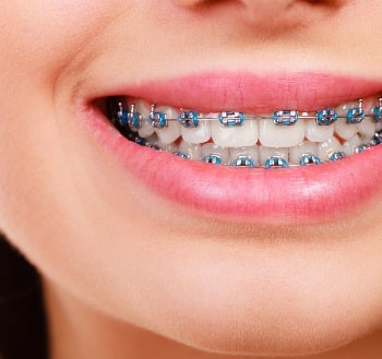 Aparelho Ortodôntico para Correção e Alinhamento dos Dentes na Arcada Dentária