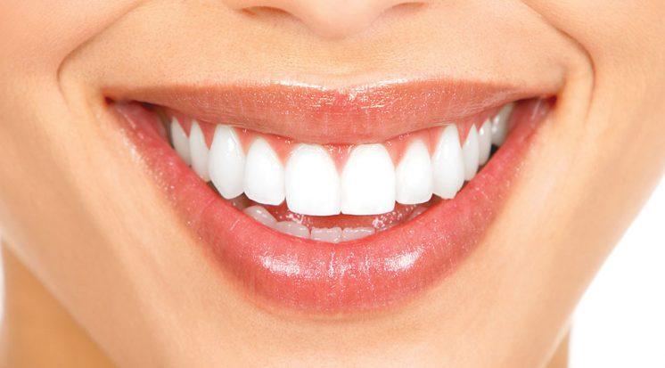 Clareamento Dental em Curitiba: Sorriso Branco